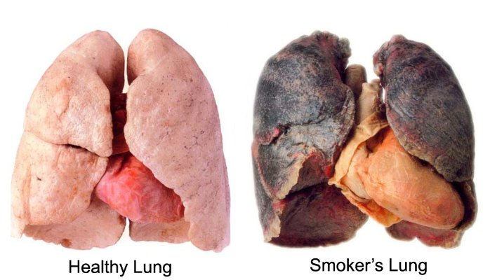 lungcancer lungs