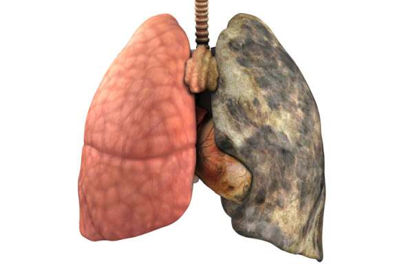 lung cancer images